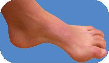 Quelle chaussure de running pour pied creux
